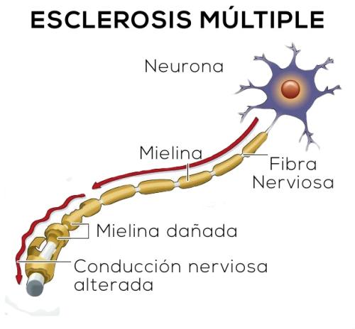 Me han diagnosticado Esclerosis Múltiple, estoy un poco confuso… ¿Qué es la Esclerosis Múltiple?