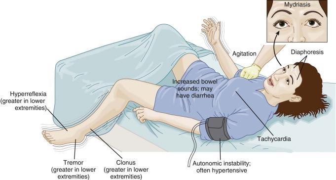 Signos y síntomas consistentes con el síndrome serotoninérgico